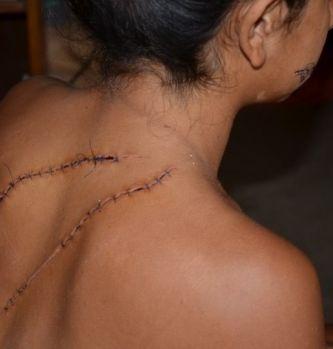 """Las """"hermanitas del bisturí"""" que desfiguraron a una menor de 15 años, ya están presas"""