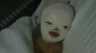 Corrientes: en el día de su cumpleaños, dieron de alta a la beba que se electrocutó