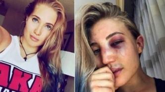 La impactante foto de la diosa rusa después de su pelea de MMA